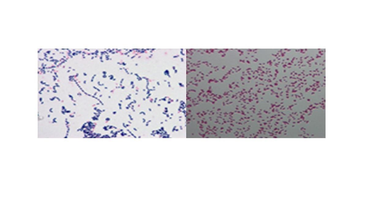 細菌を顕微鏡で見るためにグラム染色をしたところ