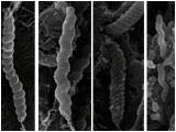 チーターの胃に生息しているヘリコバクター属細菌