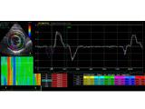 心エコー検査ストレイン法により、細かな心臓の動きを解析することができます。